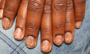 white spots on nails should you be worried