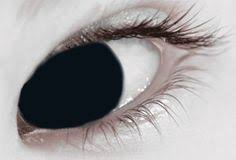 All White Halloween Contacts by Keratoconus Seeing The World Through My Eyes