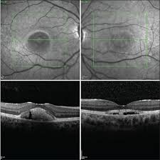 Figure 7 Patient 2 Bests Disease SD OCT Scans Of The Foveal Region Both Eyes Corresponding To FAF Pictures 6c
