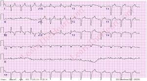 Pulmonary Embolism Example 3