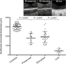 Scatter Plot Of SFCT As Measured On Enhanced Depth OCT In Choroideremia Patients With Preserved