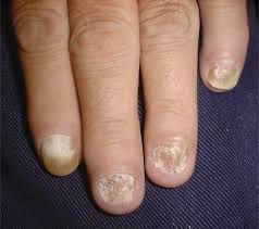 Infected Fingernail Bed by Onychomycosis Current Trends In Diagnosis And Treatment