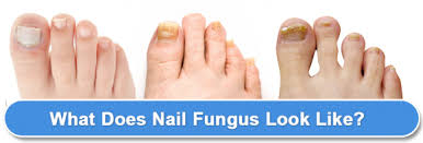 Toenail Separated From Nail Bed by Natural Toenail Fungus Cures