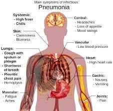21 DIY Home Reme s For Pneumonia