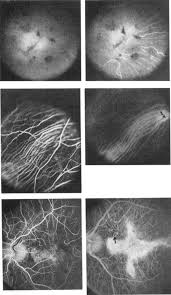 FLUORESCEIN AND INDOCYANINE GREEN FLUORESCENCE ANGIOGRAPHY IN STUDY OF AFFECTED MALES FEMALE CARRIERS WITH CHOROIDERMIA