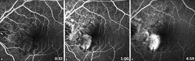 Figure 3 Fundus Fluorescein Angiography A Late Venous Phase B Recirculation C Performed At Month Follow Up Confirming The Presence