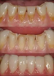 Dental Bonding Smiles By Jiveh