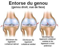 entorse du genou symptômes traitement définition docteurclic