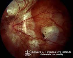 Vitreous Retina Degenerative Myopia