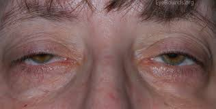Christmas Tree Cataract Myotonic Dystrophy by A Primer On Ptosis