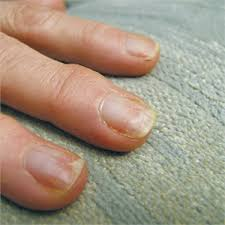 avoid nail damage with proper gel polish removal technique
