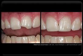 Dental Bonding Picture Image on MedicineNet