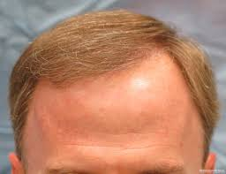 Propecia Shedding After 1 Year by Before After Hair Transplant Rfr Bernstein Medical