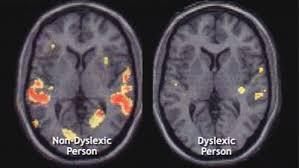 What Dyslexia Looks Like in My Brain