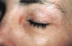Heat Rash From Tanning Bed by Contact Dermatitis American Academy Of Dermatology