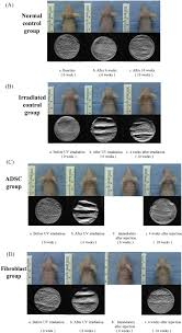 Infrared Lamp Therapy Ppt by Improvement Of Photoaged Skin Wrinkles With Cultured Human