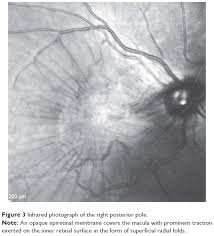 Note An Opaque Epiretinal Membrane Covers The Macula With Prominent Traction Exerted On Inner Retinal Surface In Form Of Superficial Radial