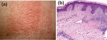 Polymorphic light eruption PLE a Clinical signs of PLE after
