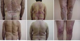 Narrow Band Uvb Lamp For Psoriasis by Acta Dermato Venereologica A Randomized Comparison Of Acitretin