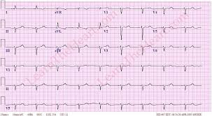 Junctional Bradycardia Example