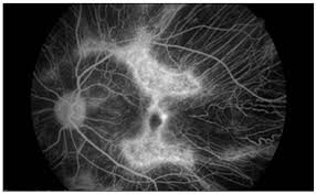 Fluorescein Angiogram Of The Left Eye After 3 Intravitreal Bevacizumab Injections Shows Leakage In Newly Developed Juxtafoveal Choroidal