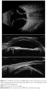 Figure 5 A 10 MHz B Scan Top And UBM Images Center Bottom Of An Eye With Choroidal Detachment Ciliary Body Effusion Over 360 Following Cataract