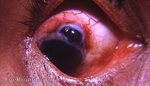 Postop Prolapse Of Iris