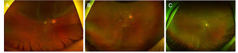 A Upper Retinal Detachment Involving The Macular Was Detected With Tear At 11 Oclock Before Vitrectomy B Fold