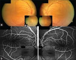 Figure 1 A Fundus Pictures Showing The Crowded Optic Discs And Elevated Horizontal