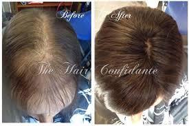 Telogen Effluvium The Hair Confidante
