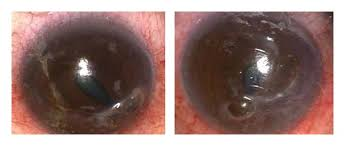 Bilateral Inferonasal Crescent Shaped Corneal Thinning With Perforation And Iris Prolapse June 2009