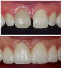 Cosmetic Dental Procedure