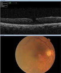 Figure 1 OCT Image Of Lamellar Macular Hole With Epiretinal Membrane Top Bottom Shows Corresponding Color Fundus