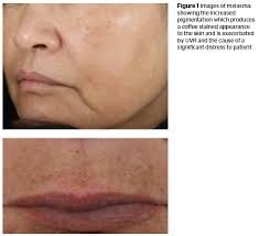 Woods Lamp Examination Melasma by Melasma Aetiology And Treatment Review Prime Journal