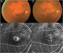 Figure 4 Right Eye Of A Patient With Choroidal Neovascularization CNV Associated