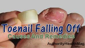 Toenail Separated From Nail Bed by Why Are My Toenails Falling Off Dead Toenail Remedies