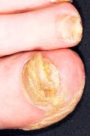 nhs direct wales encyclopaedia nail abnormalities