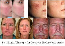 Infrared Lamp Therapy Side Effects by Red Light Therapy Reduce Wrinkles Age Spots Acne U0026 More