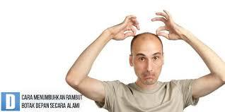 Cara Menumbuhkan Rambut Botak Depan Secara Alami