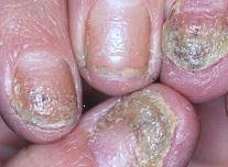White Spots On Nail Beds by Psoriasis Symptoms The Natural Psoriasis Treatment Program