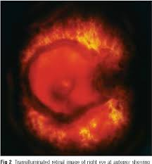 Evidence Based Case Report Perimacular Retinal Folds From Childhood