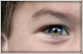 Choroideremia CHM Is A Rare Inherited Disorder That Causes Progressive Loss Of Vision Due To Degeneration The Choroid And Retina Which Caused By