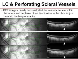 OCT A Case Report Implications Of Lacquer Cracks For Perforating Vessels In Pathologic Myopia