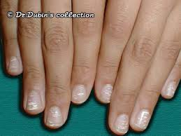 White Spots On Nail Beds by Leuconychia U2022 White Discolouration Of The Nail Plate U2022 In The