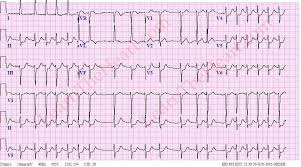 Atrial Fibrillation with RVR ECG 2