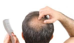 Apakah Anda Tidak PD Saat Rambut Mengalami Kebotakan Dan Kerontokan