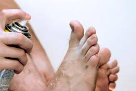 Quick Tips 5 Home Reme s for Athlete s Foot