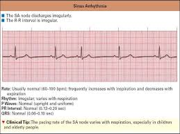 rr interval normal range cardiac rhythm disorders in children presentation