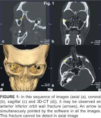Orbital Floor Fracture Icd 9 by Computed Tomography Imaging Strategies And Perspectives In Orbital