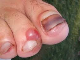toes and toenails fixing your feet blog